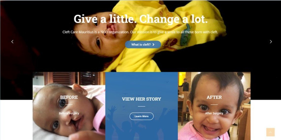 Source: Cleft Care Mauritius – Bringing a smile to a cleft child